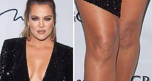 khloe-kardashian-knees